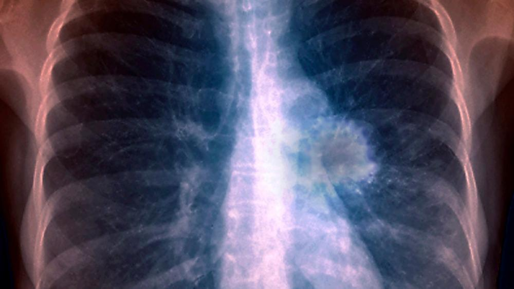 Image for post: Lung Cancer Diagnosis: What to Expect